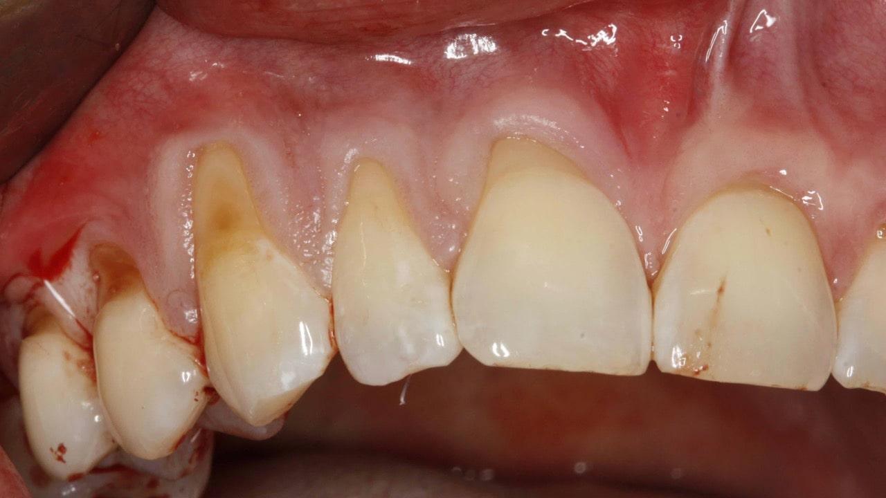 Fot 1. Znaczne obnażenie korzeni zębów (tzw. recesje dziąsłowe)